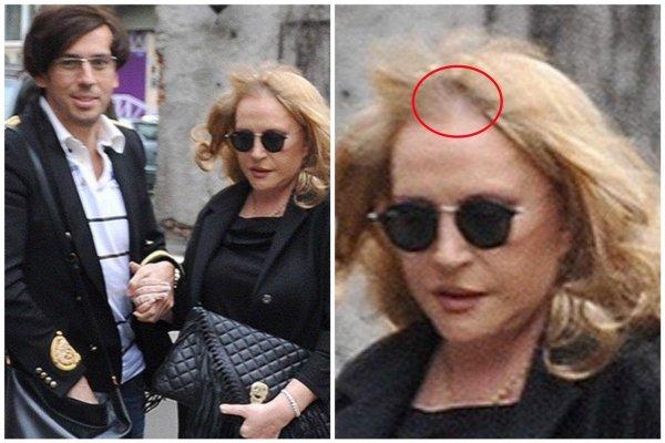 Мешок на голову – ещё лучше: облысевшая Пугачева без морщин на фото шокировала Сеть
