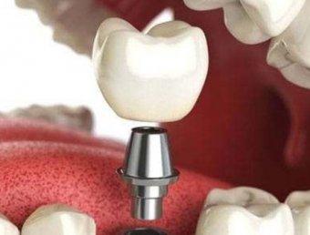 Качественная стоматология в Киеве