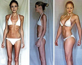 Как выглядят жертвы анорексии из ТВ-шоу после болезни