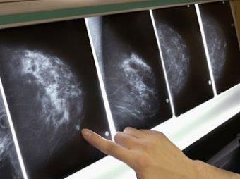 Детская худоба влияет на заболеваемость раком