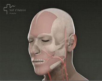 Впервые в мире хирурги целиком заменили одно лицо на другое