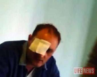 Зибров, потерявший глаз в драке, требует от обидчика  000