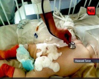 В Свердловской области 8-месячный ребенок получил ожоги при лечении в стационаре