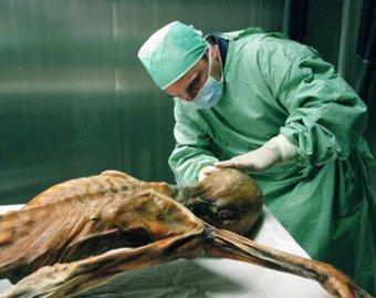 Воссоздан облик европейского мужчины, жившего 5 тысяч лет назад