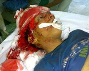 В Йемене спецслужбы расстреляли демонстрантов