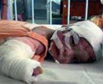 Теракт в детском саду Комсомольска-на-Амуре: ранена девочка