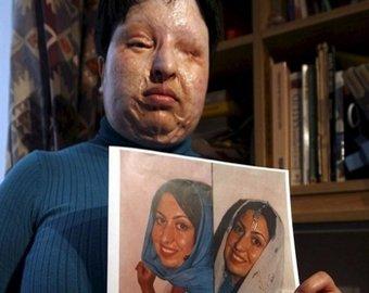 Приговоренного к ослеплению иранца простили