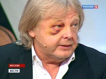 По факту избиения певца Антонова возбуждено уголовное дело