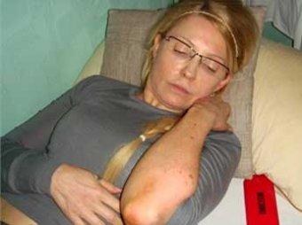 Бывшая сокамерница Тимошенко рассказала об условия ее содержания