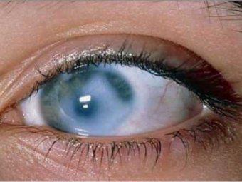 Медики: употребление более трёх чашек кофе в день грозит слепотой