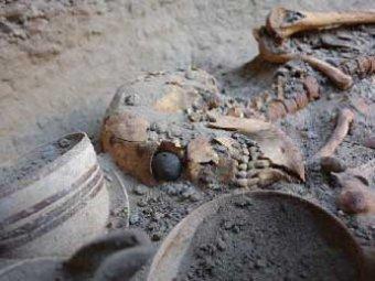 Анализ зубов древних людей подсказал, как избежать кариеса