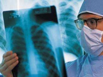 Ученые научились определять рак желудка по дыханию пациента