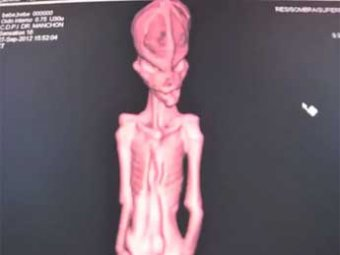 Ученые раскрыли тайну мумии инопланетянина из пустыни Атакама