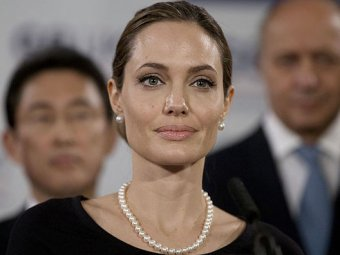 Врач Анджелины Джоли рассказала всю правду об операции