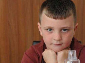 Британский школьник страдает аллергией на самого себя