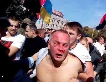 Новости Украины 30 сентября 2014: депутата Украины Шуфрича жестоко избили в Одессе