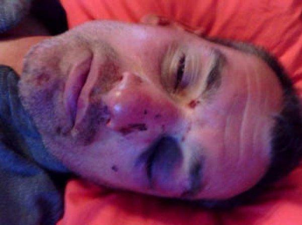 """Организатор """"третьего Майдана"""" рассказал о пытках в СБУ"""