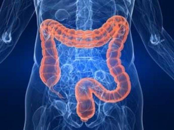 Ученые: рак кишечника вызывает не мясо, а другой привычный продукт