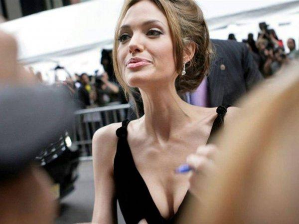 СМИ сообщили о госпитализации Анджелины Джоли (ФОТО)