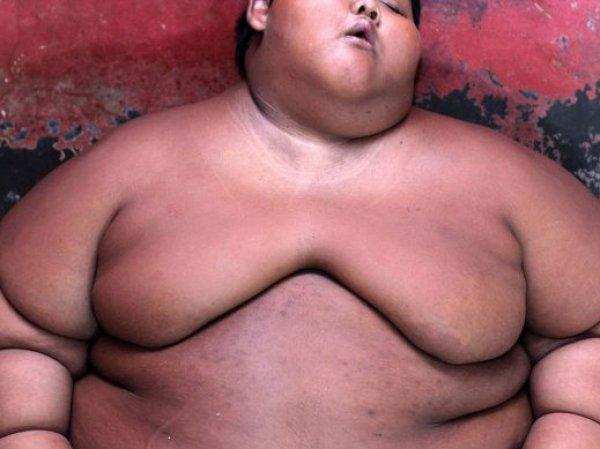 Самый толстый ребенок в мире из Индонезии весит 192 кг в 10 лет (ФОТО)