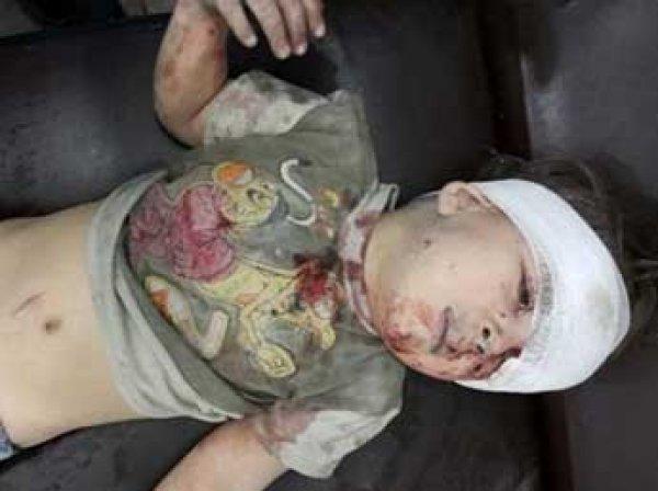 ФОТОвыжившего после авиаудара в Сирии ребенка произвели фурор в Сети