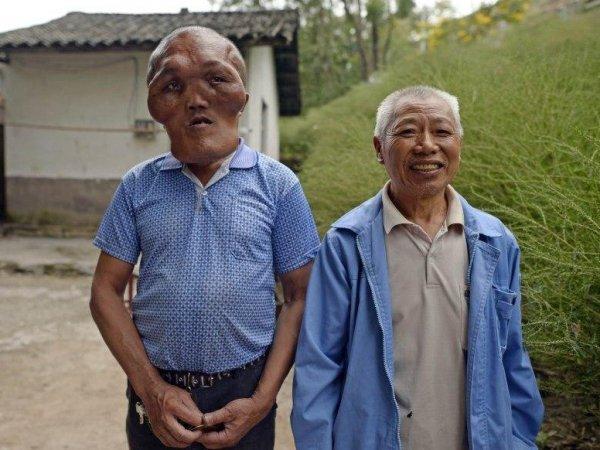 В Китае нашли человека с лицом гуманоида (ФОТО)