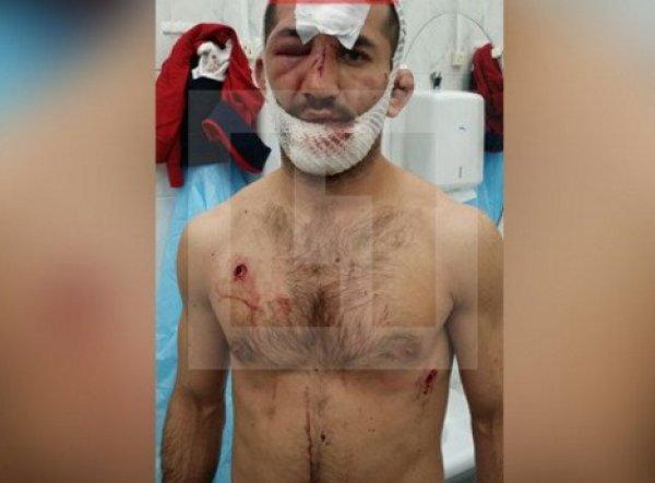 На YouTube появилось ФОТО и ВИДЕО Расула Мирзаева после вооруженного нападения на него