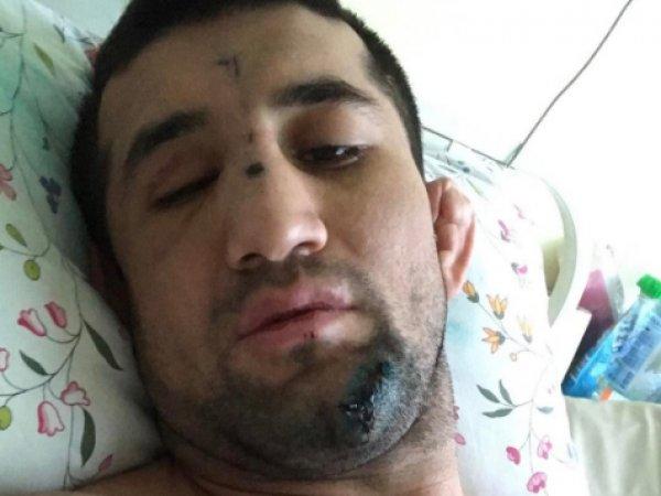 Расул Мирзаев, последние новости: боец MMA впервые рассказал о нападении (ФОТО)