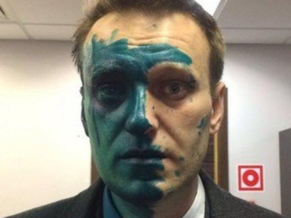 """""""Видон специфический"""": Навальный выложил в Instagram фото после операции в Барселоне"""