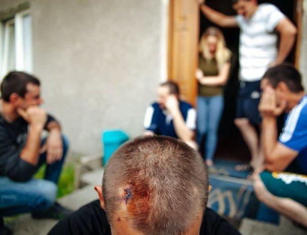 «Домой, курвы, валите на Украину!»: под Гданьском поляки жестоко избили украинских гастарбайтеров