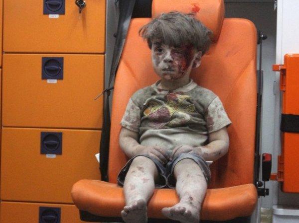 """Журналистам впервые показала мальчика, ставшего """"символом страданий в Алеппо"""" (ФОТО)"""