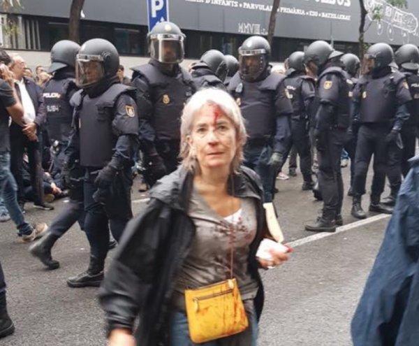 На референдуме в Каталонии пролилась первая кровь (ФОТО, ВИДЕО)