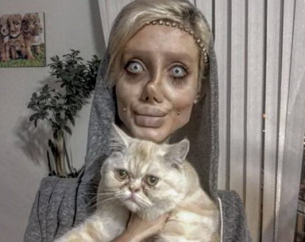 Иранка в попытке стать копией Анджелины Джоли стала похожей на зомби