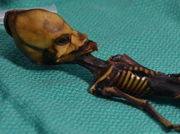 """Ученые расшифрофали ДНК загадочной мумии """"пришельца из Атакамы"""""""