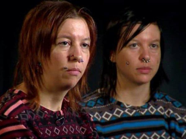 В США покончили с собой сестры-близнецы, которым в мозг вживили электроды