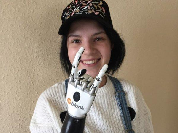 Оставшаяся без рук Маргарита Грачева рассказала, как ей живется с бионическим протезом