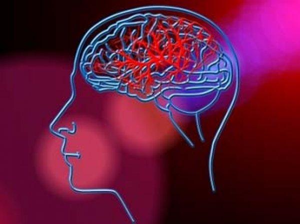 Ученые назвали верный способ защиты от инсульта