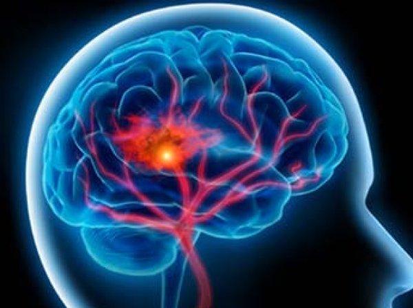 Ученые нашли способ, как избежать внезапного инсульта