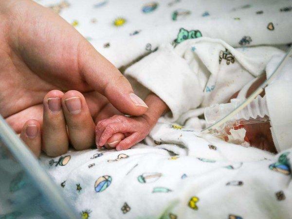 В Японии выходили самого маленького новорожденного в истории весом 268 граммов (ФОТО)