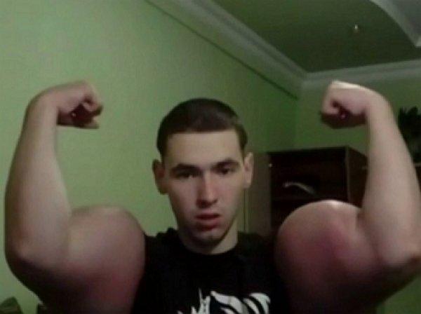 Окровавленный качок «Руки-Базуки» Терешин шокировал Сеть послеоперационным видео