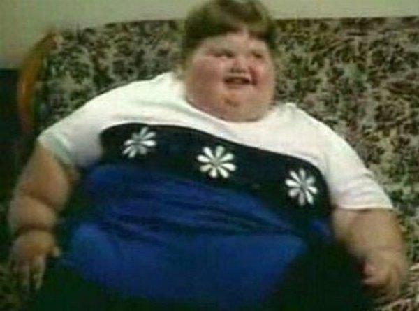 7-летняя девочка, весившая 220 кг, феноменально похудела и выросла в настоящую красавицу