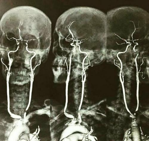 17 рентгеновских снимков, которые врачи не сразу разводят