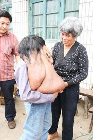 Опухоль на лице мужчины достигла веса в 15 килограмм