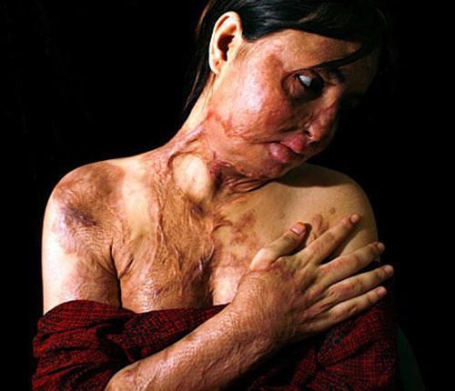 Изуродованные исламские женщины