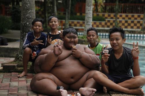 Самый толстый мальчик в мире потерял 80 килограммов.