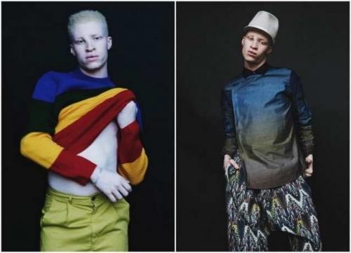 Самые необычные модели в мире моды