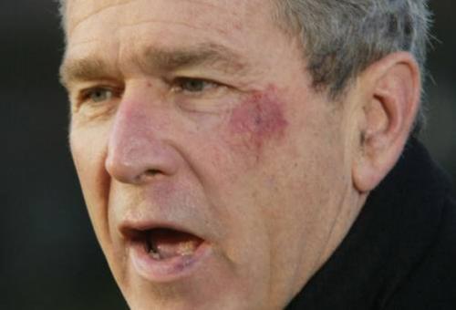 Опасные и скандальные курьезы политиков: кренделек-убийца и драки с кенгуру