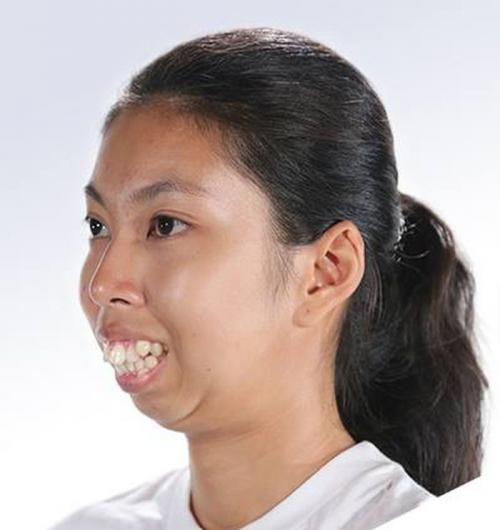Девушка с деформацией челюсти решила поучаствовать в шоу талантов и теперь её не узнать