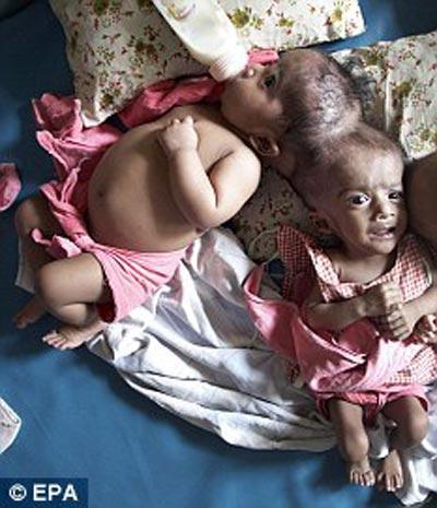 Врачи разделили мозг сиамских близнецов