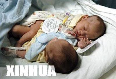 Операцию по разделению сиамских близнецов транслировали в прямом эфире